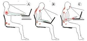 postural pain 2