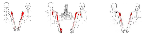 postural pain 4